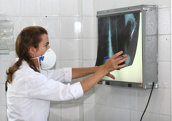 A cada ano, são notificados aproximadamente 5 mil casos novos de tuberculose na Bahia. Foto: Carol Garcia / AGECOM / GOVBA /